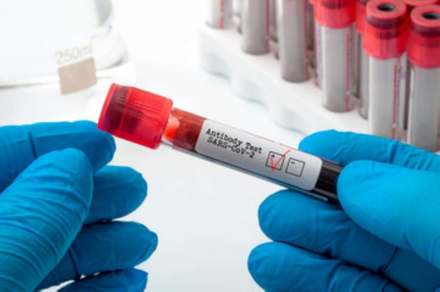 The Williamson County Commissioners Court approved the purchase of antibody coronavirus tests for first responders May 12. (Courtesy Adobe Stock)