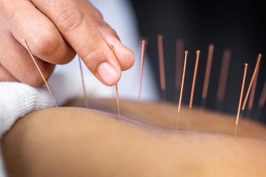 Spring Green Acupuncture & Herbal Clinic is set to reopen at its new location in October. (Courtesy Adobe Stock)